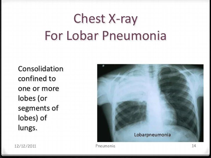 Pneumonia Chest Atypical Ray X