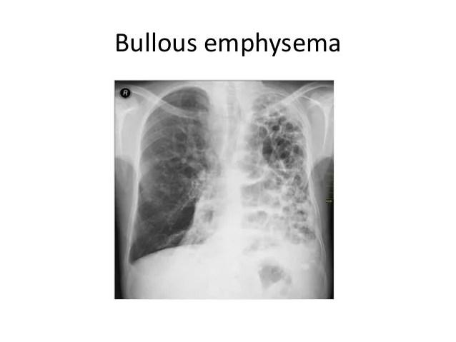 Emphysema Barrel Chest