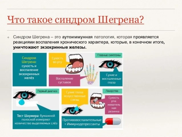 Sindrom Shegrena