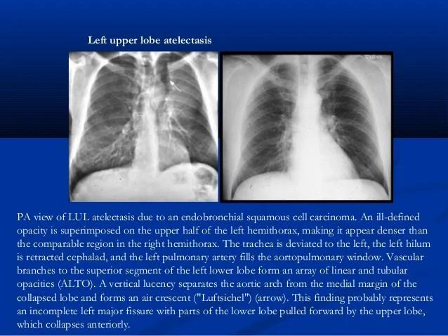Lung Hilum Right Region