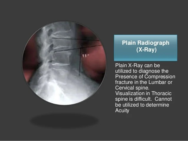 Ray Compression Thoracic Fracture X Spine