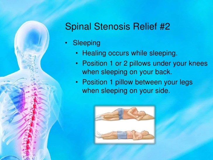 spinal stenosis conservative treatments