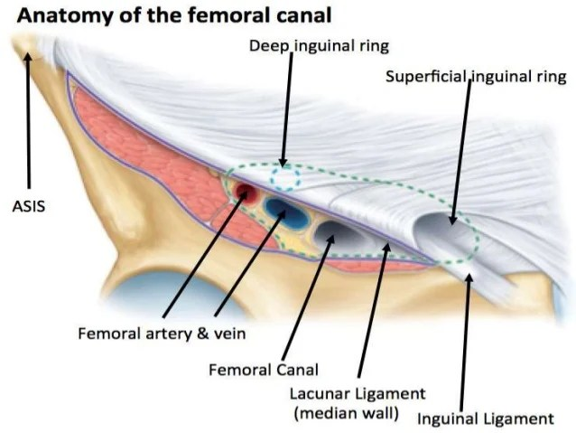 Right Inguinal Hernia Anatomy