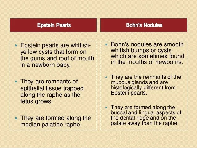 Epithelial Pearls Newborn