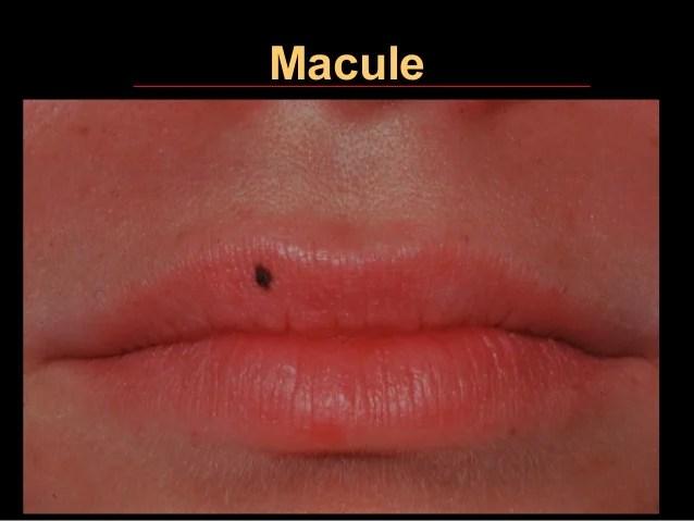 Macule Papule Patch Plaque