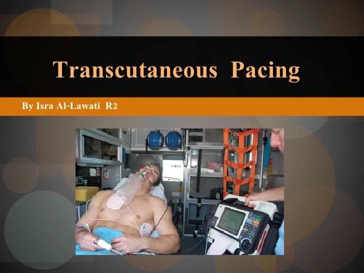 Transcutaneous Pacing