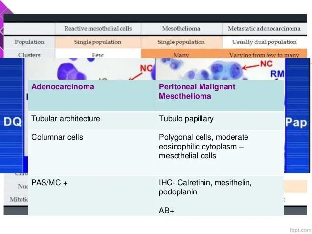 Metastatic Peritoneal Mesothelioma