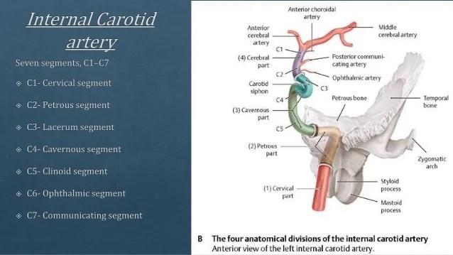 Normal Posterior Cerebral Circulation Anatomy