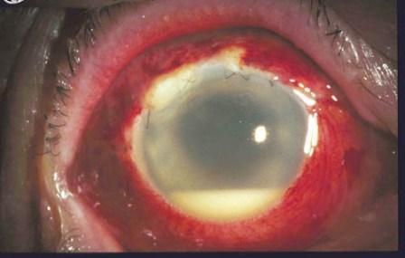 2ページ目の[ 手術全般 ] | にしわき眼科クリニック,院長日記。 - 楽天ブログ