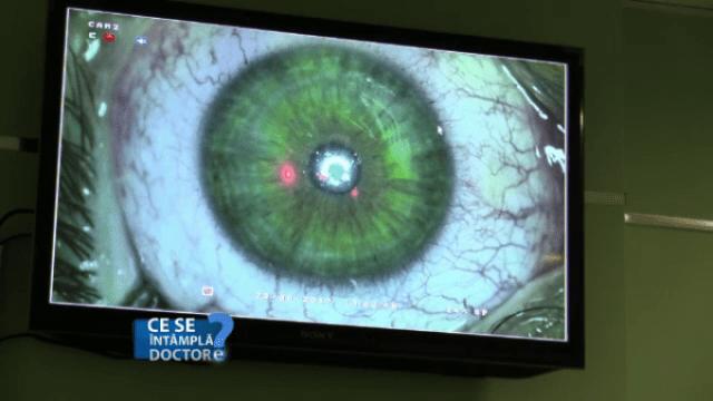 Operația de cataractă, recomandările medicilor