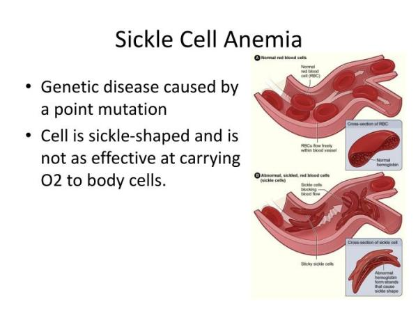 research page american sickle cell anemia association - 720×540