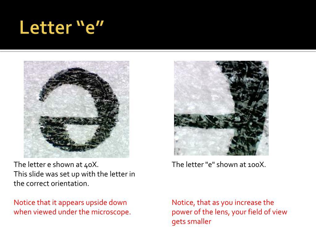 Letter E Under Microscope 40x