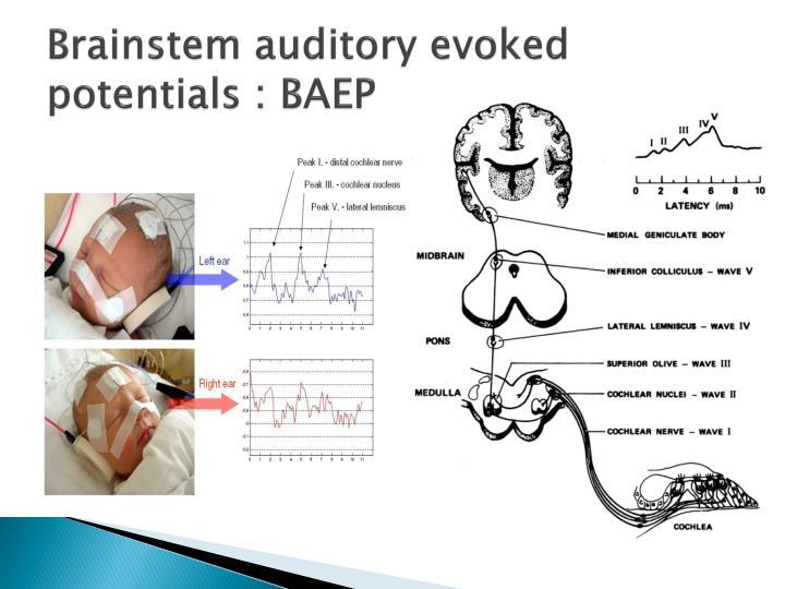 Auditory brainstem response audiometry in tinnitus patients