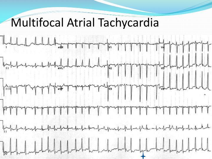 Atrial Reentrant Tachycardia