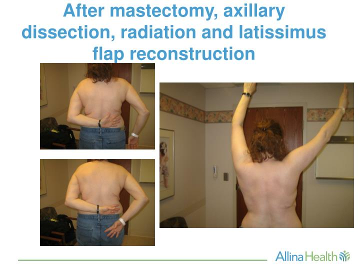 Before And After Mastectomy