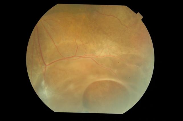 Retinoschisis Retina Image Bank