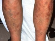Subcutaneous Panniculitis-like T-cell Lymphoma - 1.