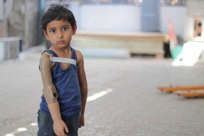 Rayan, de tres años, perdió su brazo en un bombardeo.