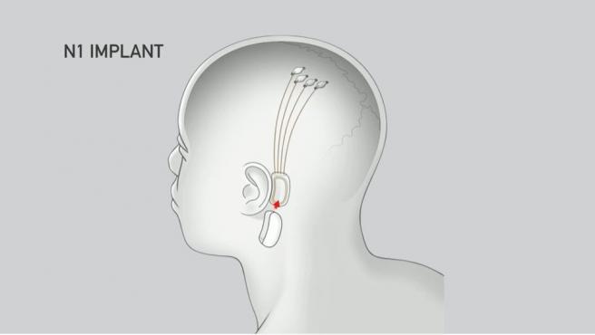 Así sería el implante.