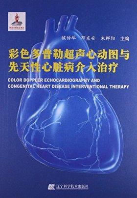 彩色多普勒超声心动图与先天性心脏病介入治疗