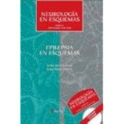 Epilepsia en esquemas
