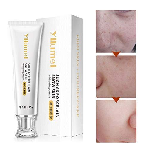 Mimiga Whitening Cream Whitening Serum Hautcreme Whitening Creme zum entfernen von Sommersprossen...