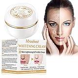 Whitening Cream, Sommersprossen Creme, Flecken Creme, Sommersprossen Entfernen, New Anti Melasma...
