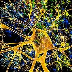 Cuadro sobre lienzo 70 x 70 cm: Neurona amarilla