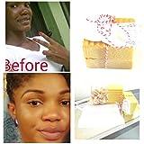 Lactic Acid kojic acid soap, Skin Lightening Soap-Kojic Acid Powder-Shea Butter,Mango Butter, (Vitamin A)-Arbutin Powder-Papaya-Glutathione Powder-Niacin