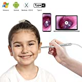 Ultra-Slim Digital Otoscope, Teslong New Upgrade 4.3mm Diameter Visual Ear Cleaner Ear Scope Camera with Earwax Removal Tool and Otoscope Specula for Adult Children & Veterinary