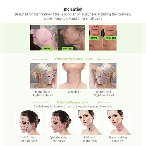 MLAY-RF-Radio-Frequency-Facial-And-Body-Skin-Tightening-Machine-Professional-Home-RF-Lifting-Skin-Care-Anti-Aging-Device-Salon-Effects
