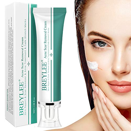 Natural Scar Removal Cream for New and Old Scars, Acne Treatment Cream Effective in Acne Spots, Stretch Marks, C-Section, Burn, Keloid and Surgical Scars-Gentle Herbal Extracts formula(30Ml) (30ml)