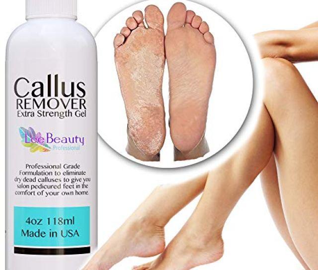 Amazon Com Best Callus Remover Callus Eliminatorliquid Gel For Corn And Callus On Feet Professional Grade Beauty