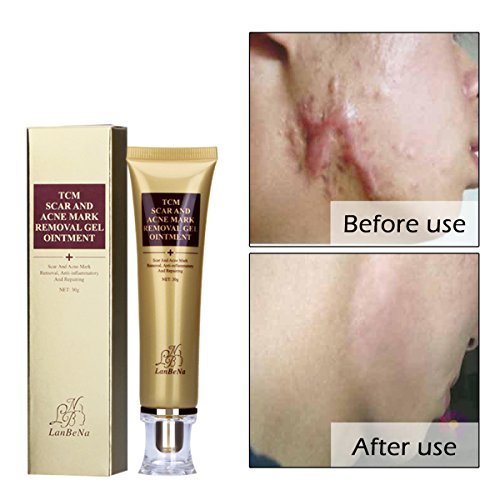 Amareu Acne Scar Removal Cream