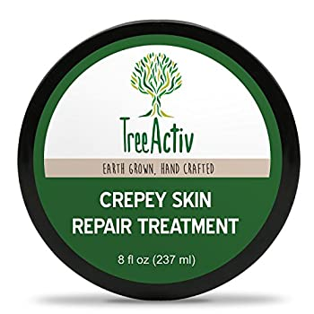 Skin Tightening Cream Losing skin elasticity is an inevitable part of aging; we all have to grow old sometime. But the good news is that the onset of wrinkles can be delayed. Our crepe skin lotion helps revitalize dry, dull, sagging, crinkly, or crep...