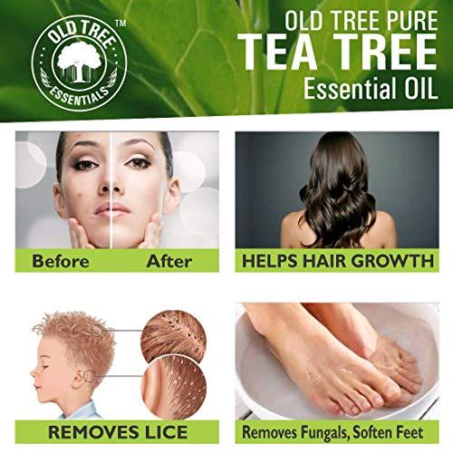Tea Tree Oil 5