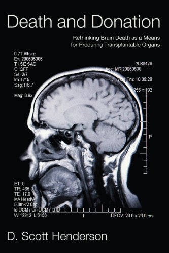 Death and Donation: Rethinking Brain Death as a Means for Procuring Transplantable Organs