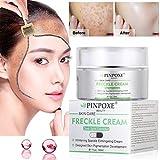 Skin Brightening Cream,Freckle cream,Dark Spot Corrector Remover