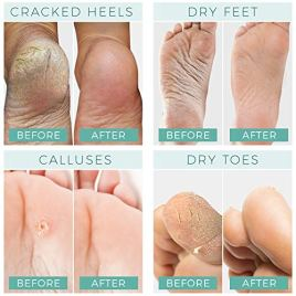 Foot Peel Mask – 2 Pack – For Cracked Heels