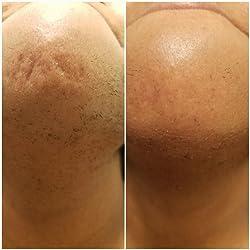 Braun Silk-épil 9 9-579 Women's Epilator, Electric Hair Removal, Wet & Dry, with Electric Razor - Bonus Edition (Packaging May Vary) Customer Image 1