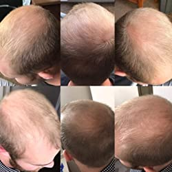 Men's Rogaine 5% Minoxidil Foam for Hair Loss and Hair Regrowth, Topical Treatment for Thinning Hair, 3-Month Supply Customer Image 1