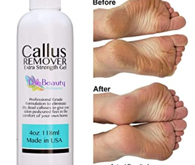 Image Unavailable Image Not Available For Color Best Callus Remover