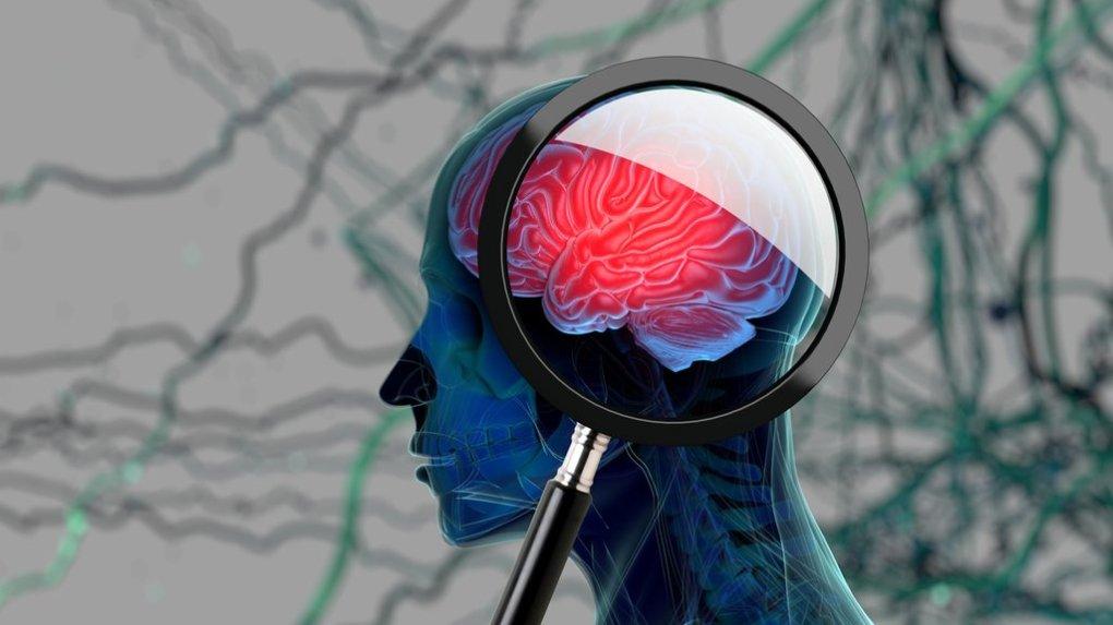 10 zgodnjih znakov demence