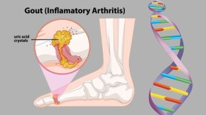 Geics, Not Diet, Is the Likely Cause of Gout | Everyday