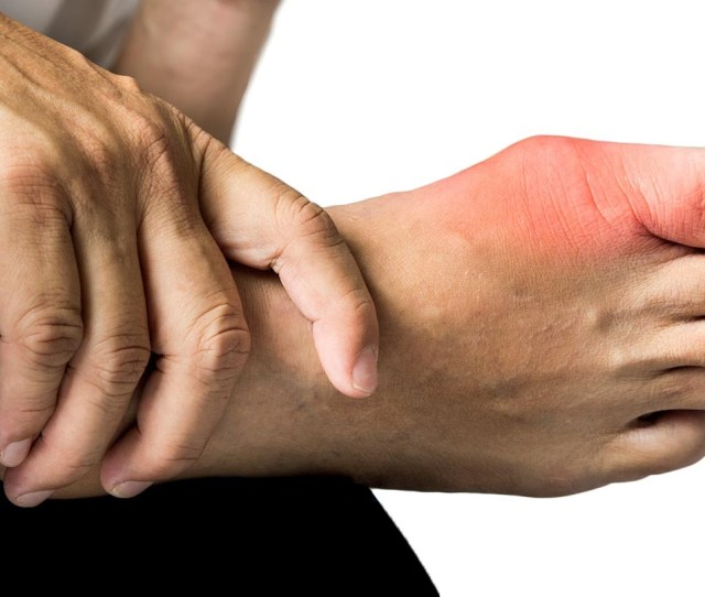 Psoriatic Arthritis And Conditions Like Gout May Share Characteristics But They Require Different Treatments