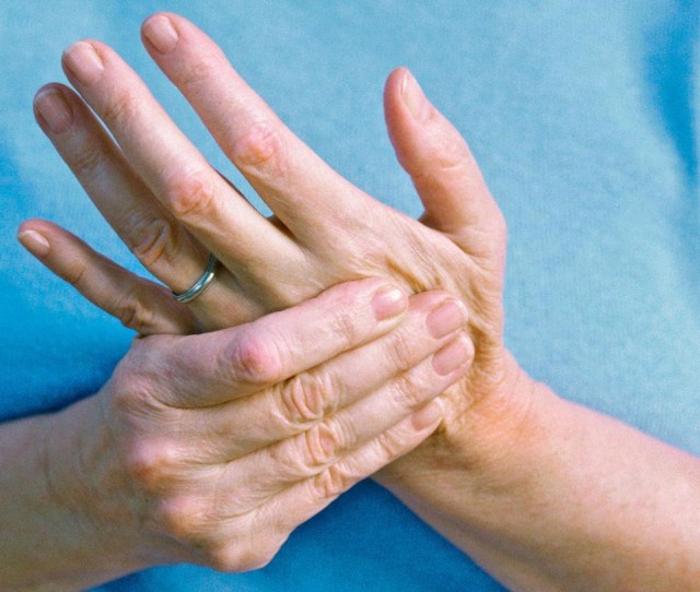 People Who Have Psoriatic Arthritis Are At Greater Risk Of Developing Fibromyalgia