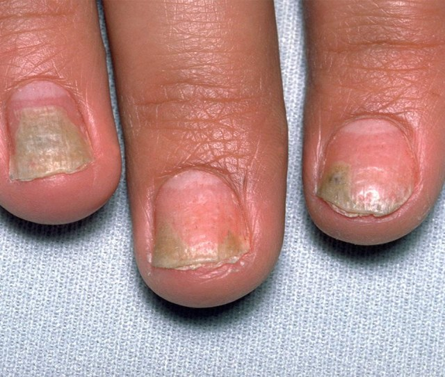 The Effect Of Psoriatic Arthritis On Nails And The Nail Bed Is An Often Overlooked Complication