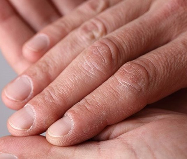 Most Nail Changes Are Nothing To Worry About But Some Abnormalities Could Indicate A Medical