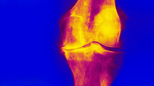 Joint pain can be a symptom of osteoarthritis, gout, fibromyalgia, and other conditions.