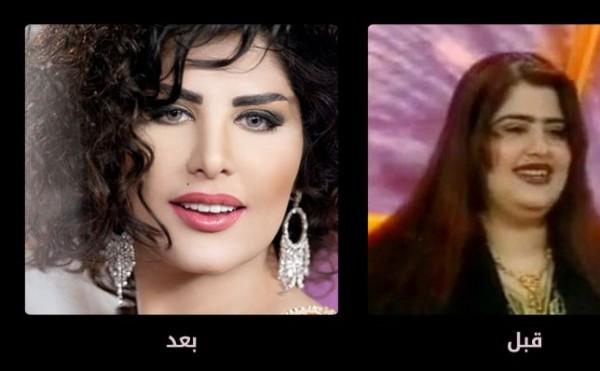 تشابه الفنانات اللبنانيات بعد عمليات التجميل صور